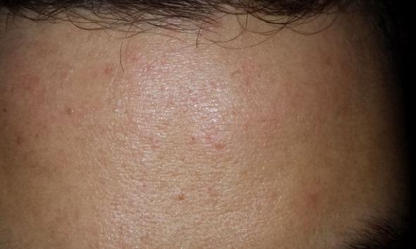 stirn1 - (Gesundheit, Beauty, Pickel)