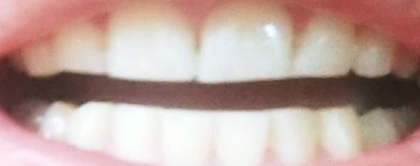 Was kann man gegen ekelhafte Zähne tun wenn man sie schon sehr oft putzt (elektrisch und normal)? Voll schief und klein passt da eine Zahnspange drauf?