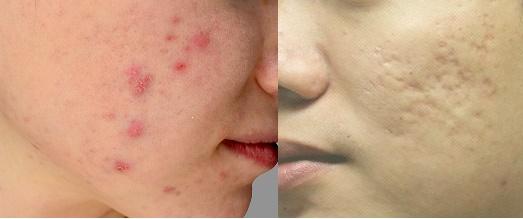 was kann man gegen poren machen hilfe bitte gesundheit haut hilflos