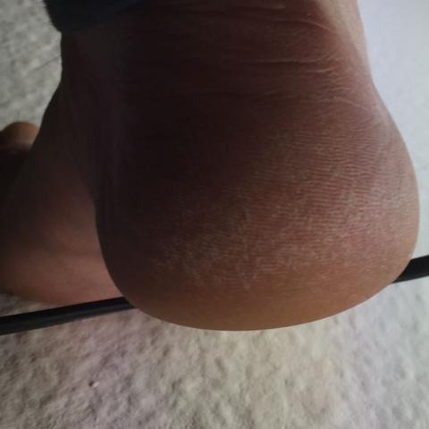 Fuß trocken und hart ? - (Füße, trocken)