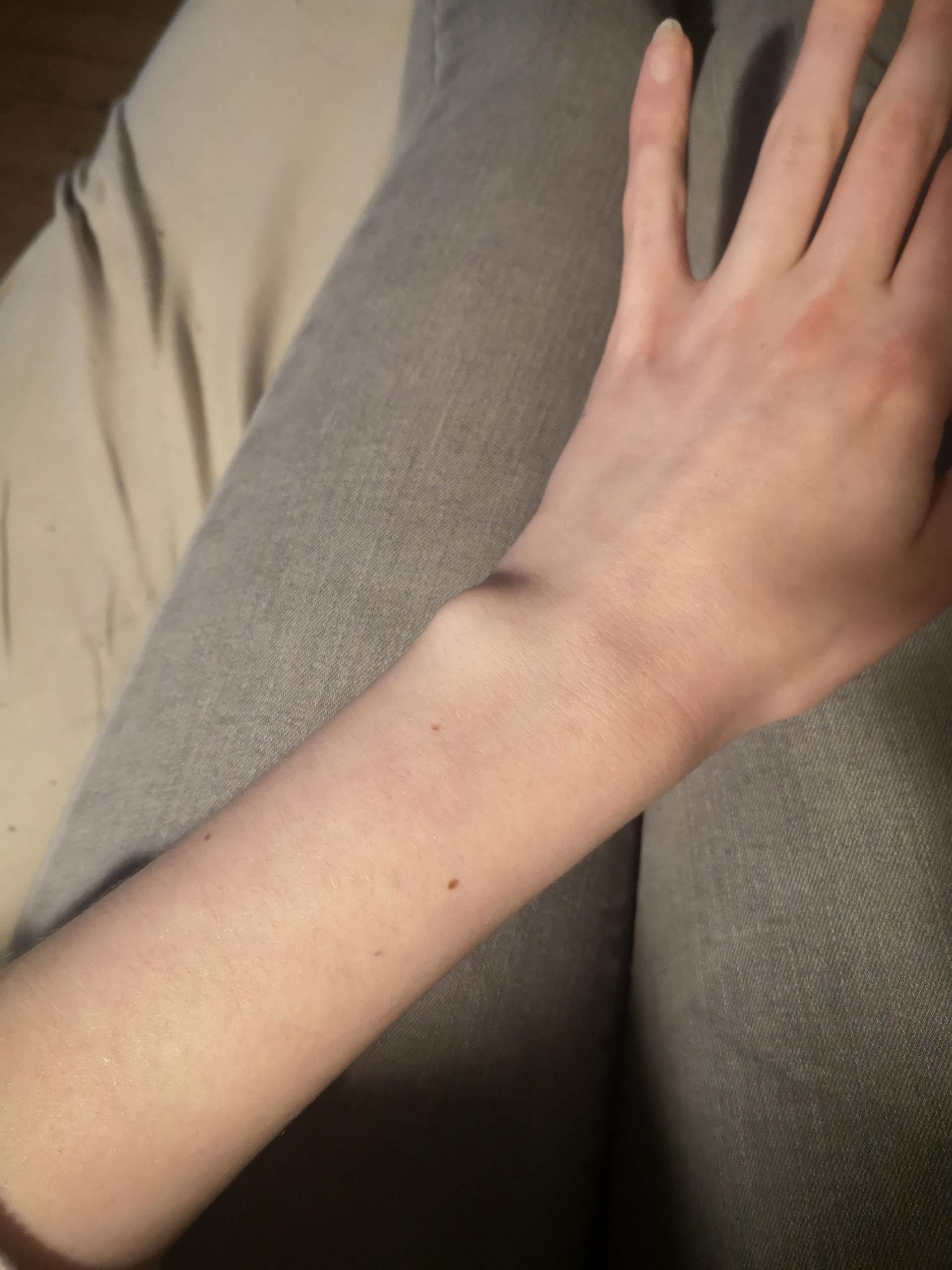 Dünne handgelenke