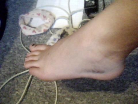 Was kann mit meinem Fuß passiert sein? (Arzt, Muskeln
