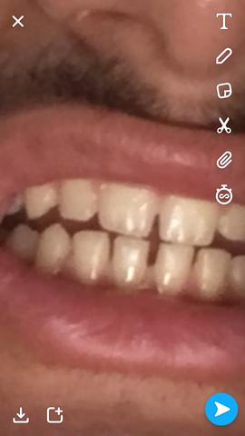 Zahnlücke was tun vorne gegen Methoden, Kosten