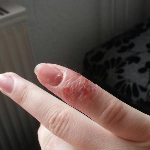 Finger  - (Schmerzen, Haut, Hand)