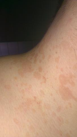 Meine Haut - (Haut, Flecken)