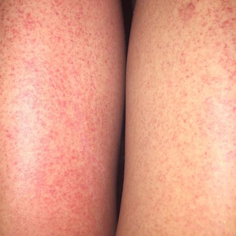 so hässlich  - (Beine, rot, Ausschlag)