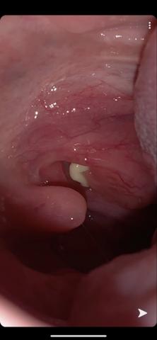 was könnte das im Mund sein?