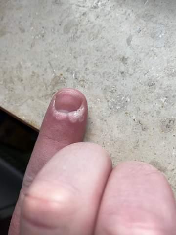 Was könnte das sein an meinem Fingernagel (Achtung, könnte manchen nicht gefallen)?
