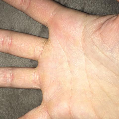 Die handfläche der schlimmeren seite.. - (Haut, trocken, gelb)