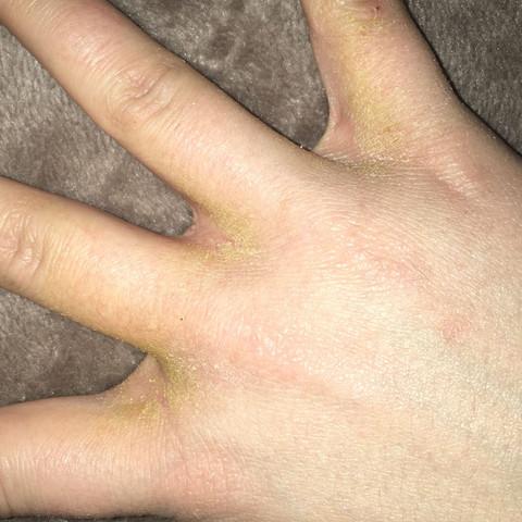 Das ist die hand wo es schlimmer geworden ist.. - (Haut, trocken, gelb)