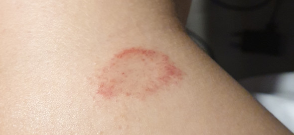 Bauch roter am trockener fleck Hautkrankheiten erkennen