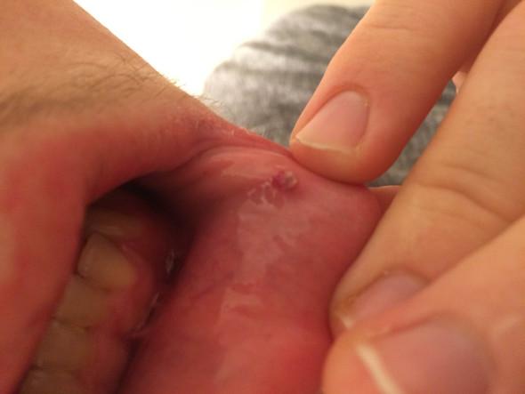 Bild von dem Auswuchs - (Gesundheit, Haut, Mund)