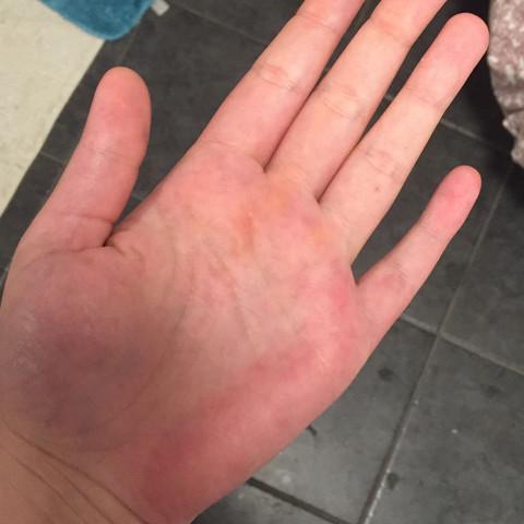 die linke Hand, rechte sieht genauso aus  - (Gesundheit, Haut, Hand)
