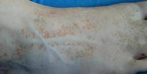 Was könnten diese braunen Flecken auf den Füssen sein