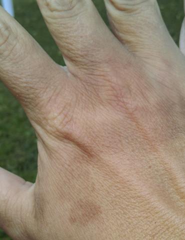 Der flecken hand auf Braune Flecken