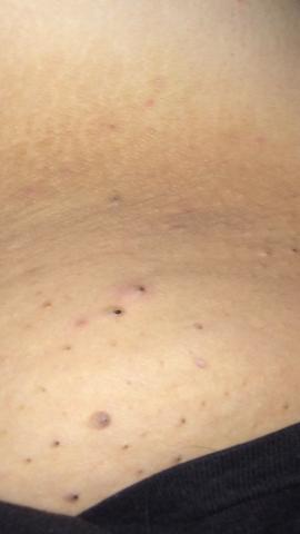 schwarze punkte - (Gesundheit und Medizin, Haut, schwarze-punkte)