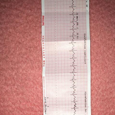 EKG Ausdruck 4 Kanal - (Medizin, Ekg, Herzrhythmusstörungen)