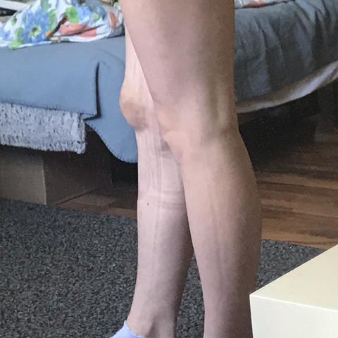 knie geprellt