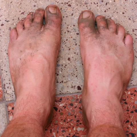 Das Kaliumpermanganat gegen gribka der Beine