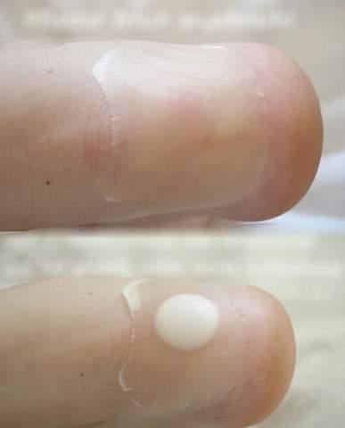 Was passiert, wenn man ein Blasenpflaster auf eine Blase macht?