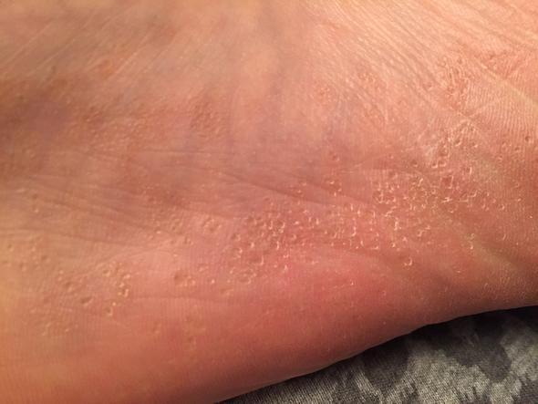 Fußpilz Bläschen