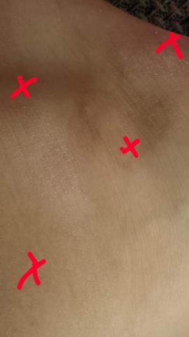 Flecken  - (Medizin, Arzt, Füße)
