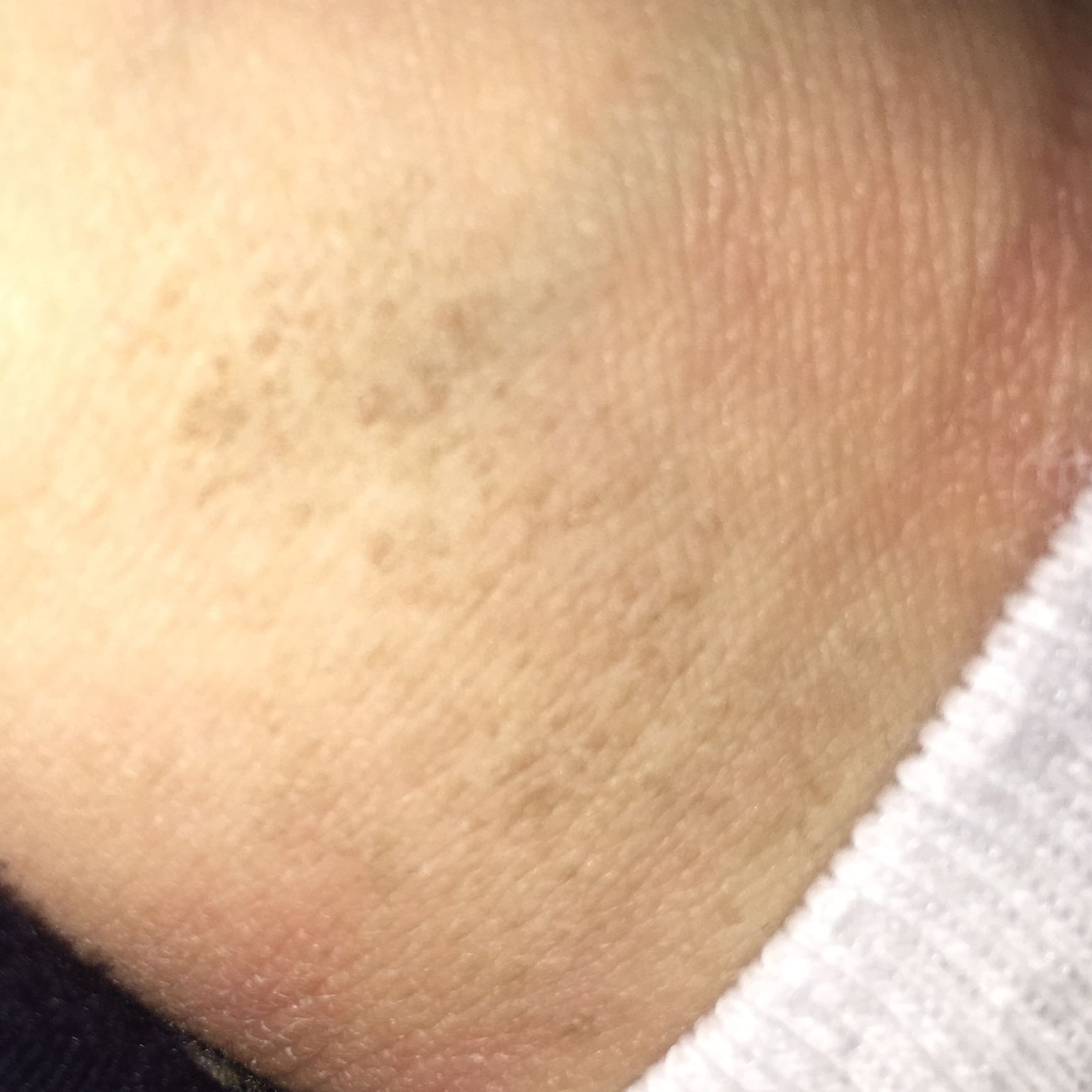 Was sind das für braune Flecken auf der Haut und wie