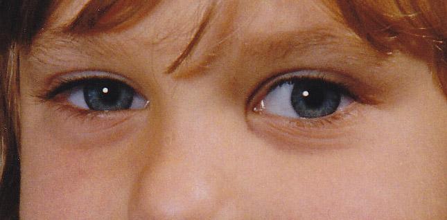 Die dunklen Kreise unter den Augen die Behandlung im Salon