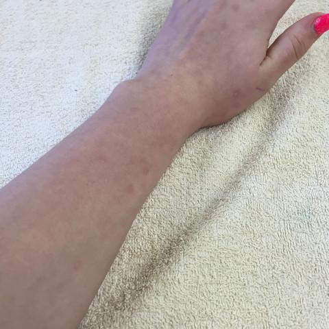 Linker Arm  - (Flecken, Arm)