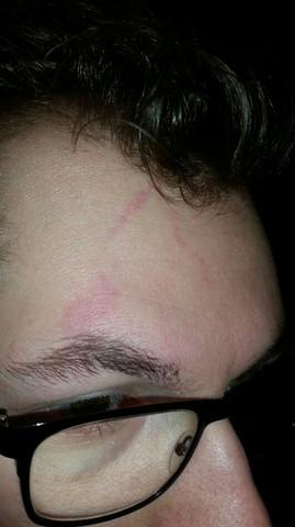 Haut Flecken  - (Haut, rote flecken)