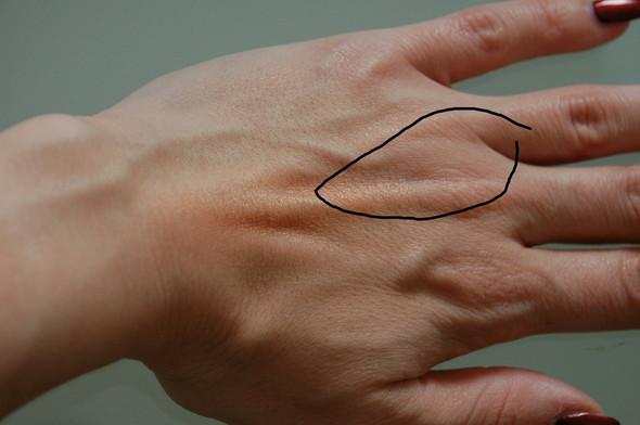 Handrücken - (Finger, handschmerzen)