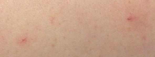 Zwei dieser Punkte auf meinem Arm - (Gesundheit, Körper, Krankheit)