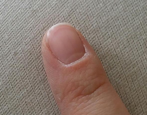 Fingernagel mit Linie - (Gesundheit, Gesundheit und Medizin, Fingernägel)