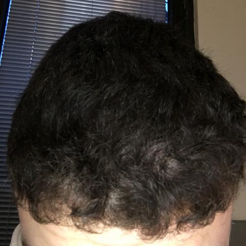Was Sind Das Für Löcher In Meinen Haaren Haarausfall