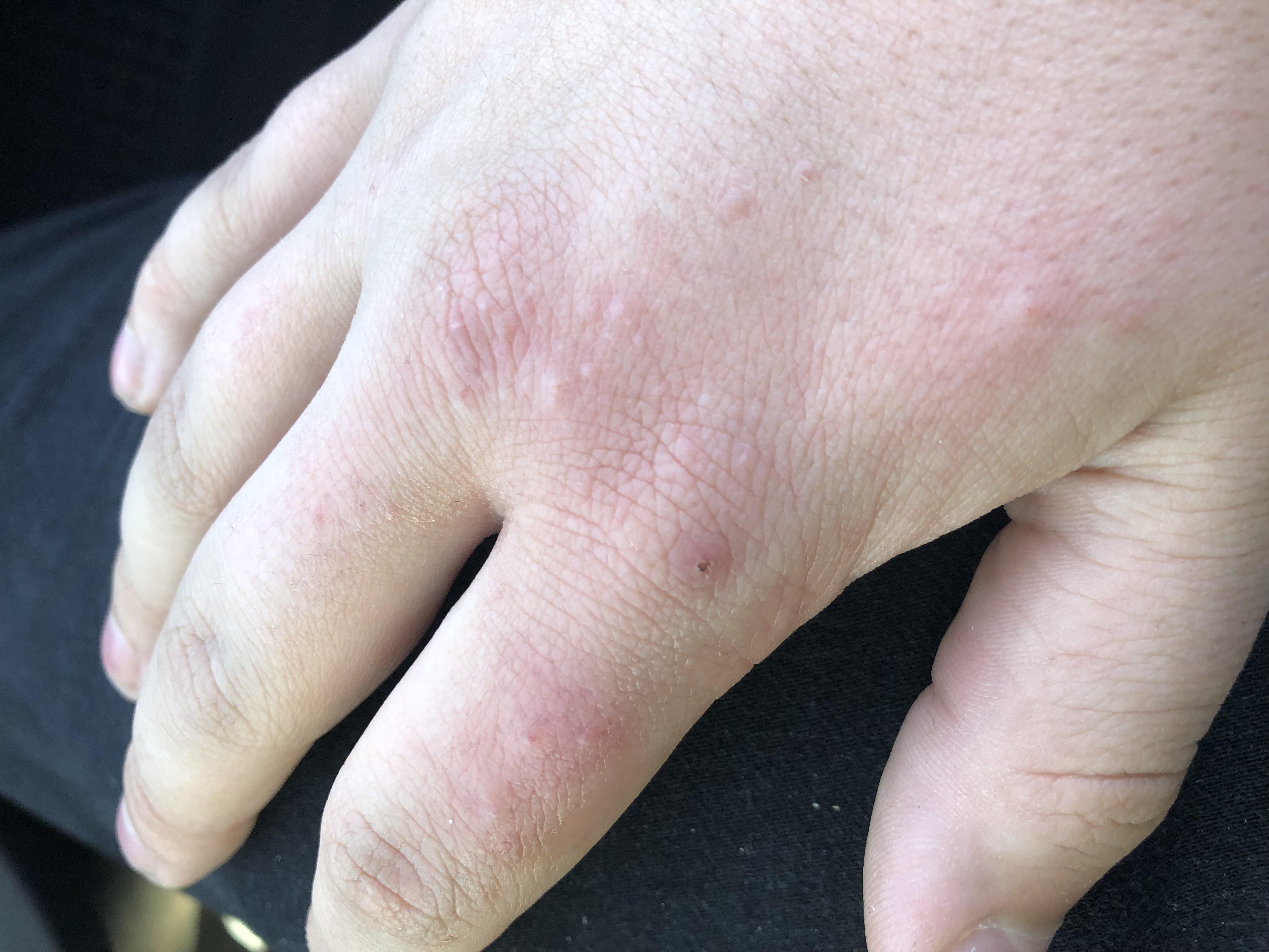 Was sind das für Pickel auf meinem Handrücken? (Haut