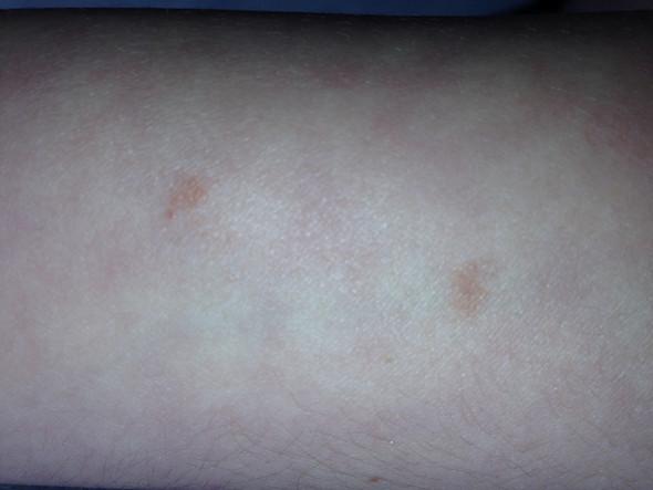 Flecke Unterarm - (Gesundheit, Körper, Arzt)