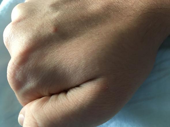 Rötungen am Handrücken  - (Gesundheit und Medizin, Angst, Haut)
