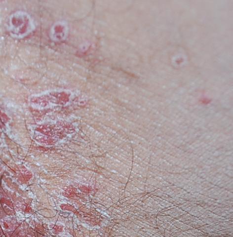 Rote Flecken mit weissem Rand - (Gesundheit, Krankheit, Haut)