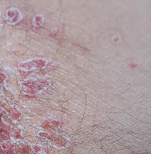 Was sind das für roten Flecken mit Hautresten am Rand im
