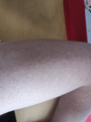 Was sind das für Sachen auf der Haut?
