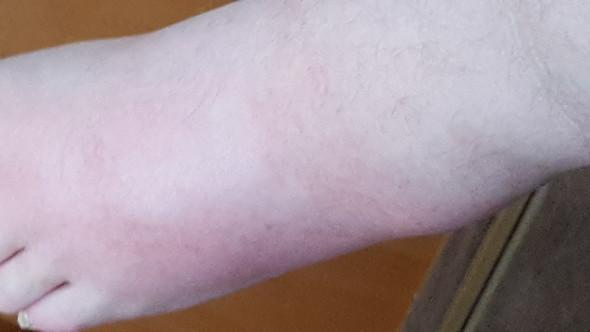 Man sieht, dass vom äußeren Knöchel her eine leichte rote Schwellung ist. - (Fussschmerzen, Schwellung, Gelenkschmerzen)