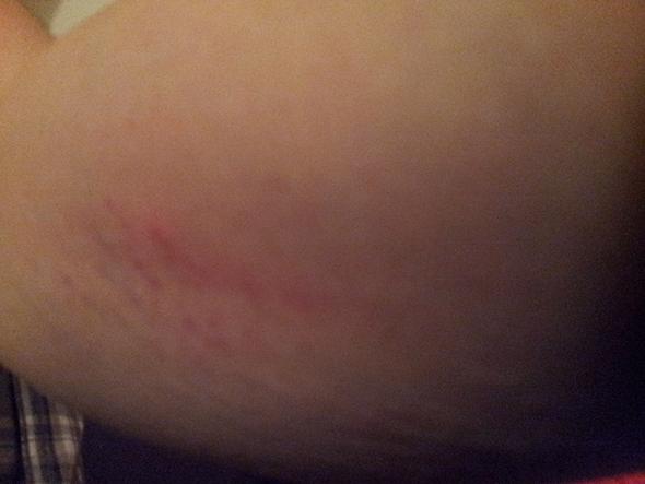 Arm - Stiche - (Haut, Arm, Stich)