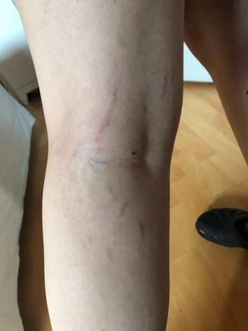 Was sind das für Streifen am Bein (auch ab Oberschenkeln)?