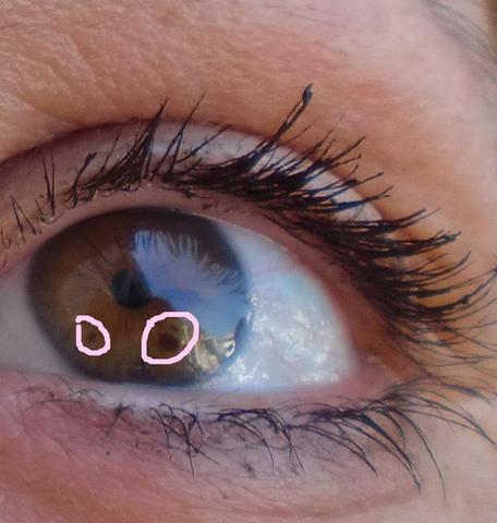 Was sind die braunen Flecken im Auge?