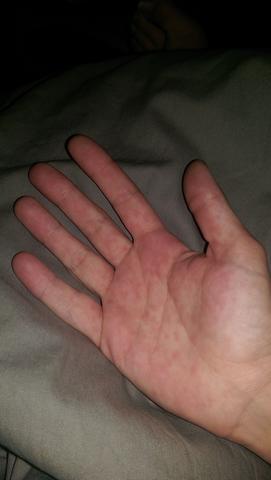 was sind diese flecken? meine handinnenflächen schmertzt