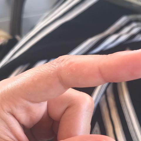 Finger - (Haut, Pickel, Hautpflege)