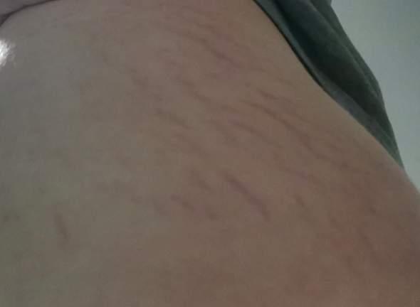 Was sind diese Streifen an meinem Oberschenkel?