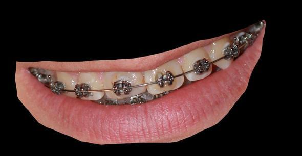 zähne - (Beauty, gelbe Zähne)