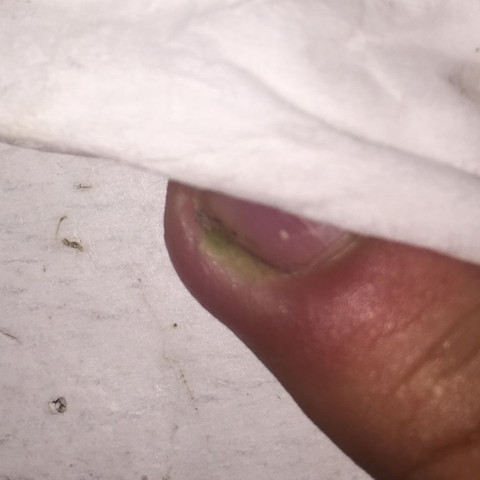 Finger 😖 - (Arzt, Finger, Infektion)