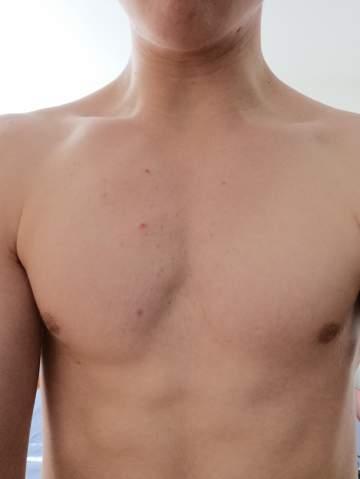 Große brust unterschiedlich Unterschiedlich große